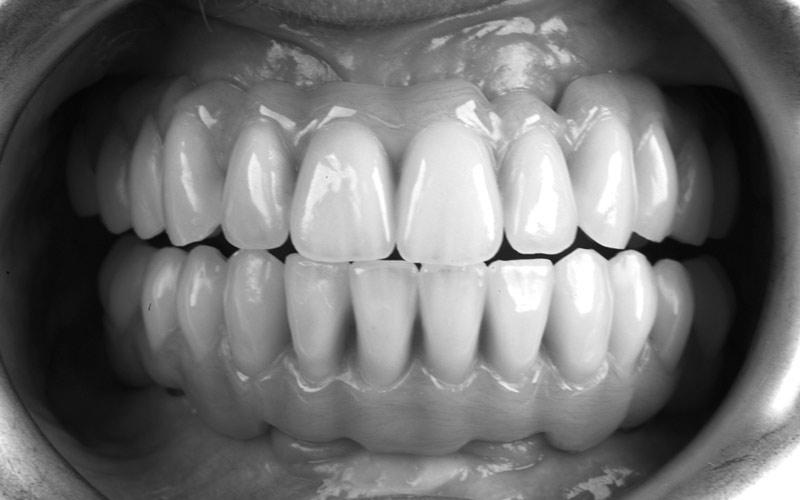Implantologia studio Tondelli e Malaguti