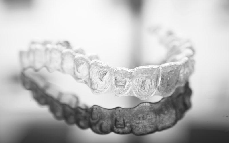 Apparecchi invisibili Reggio Emilia | Ortodonzia | Tondelli e Malaguti Odontoiatria